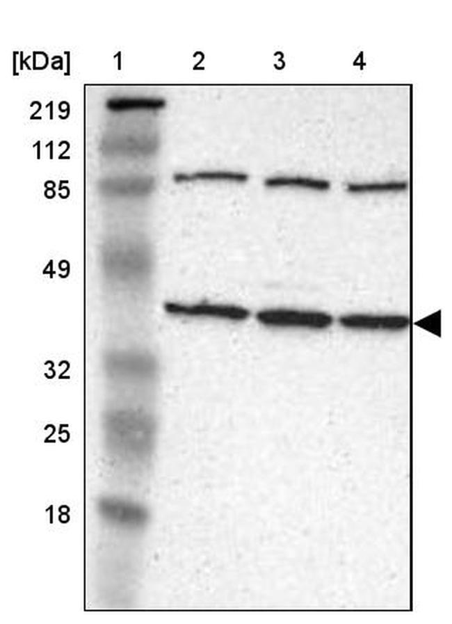 IDH3G Antibody in Western Blot (WB)