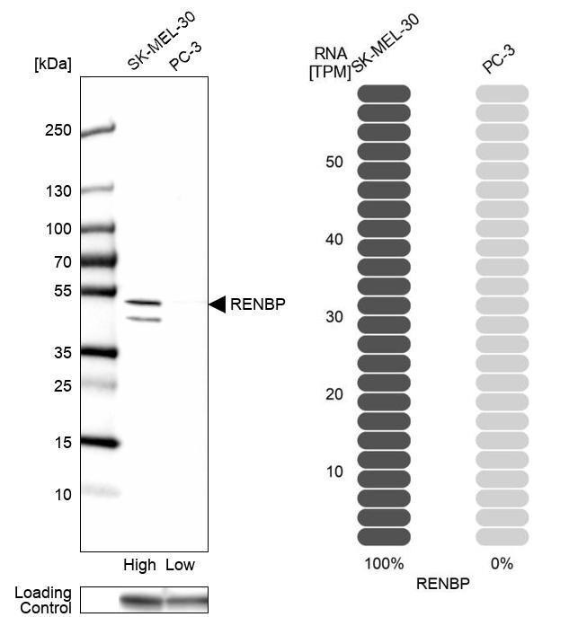 RENBP Antibody in Western Blot (WB)