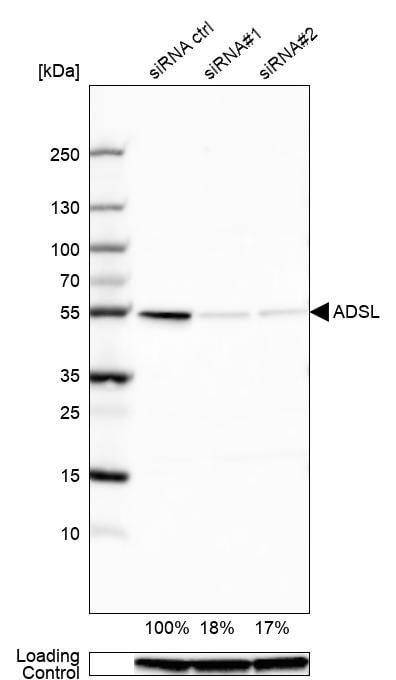 ADSL Antibody in Knockdown
