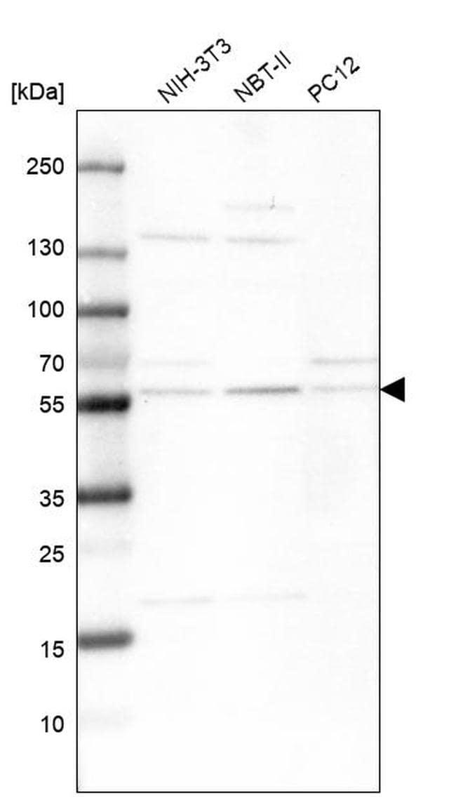 XPNPEP3 Antibody in Western Blot (WB)