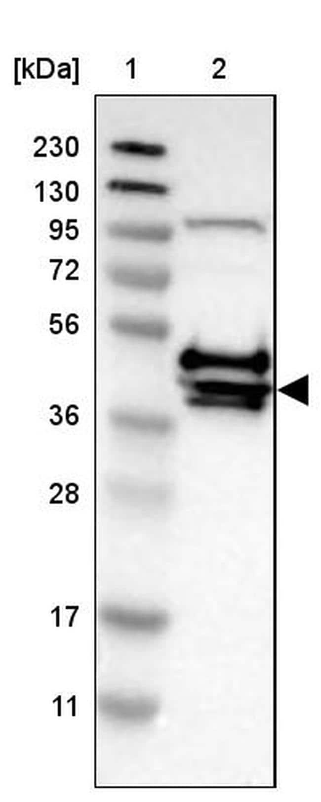 CRELD2 Antibody in Western Blot (WB)
