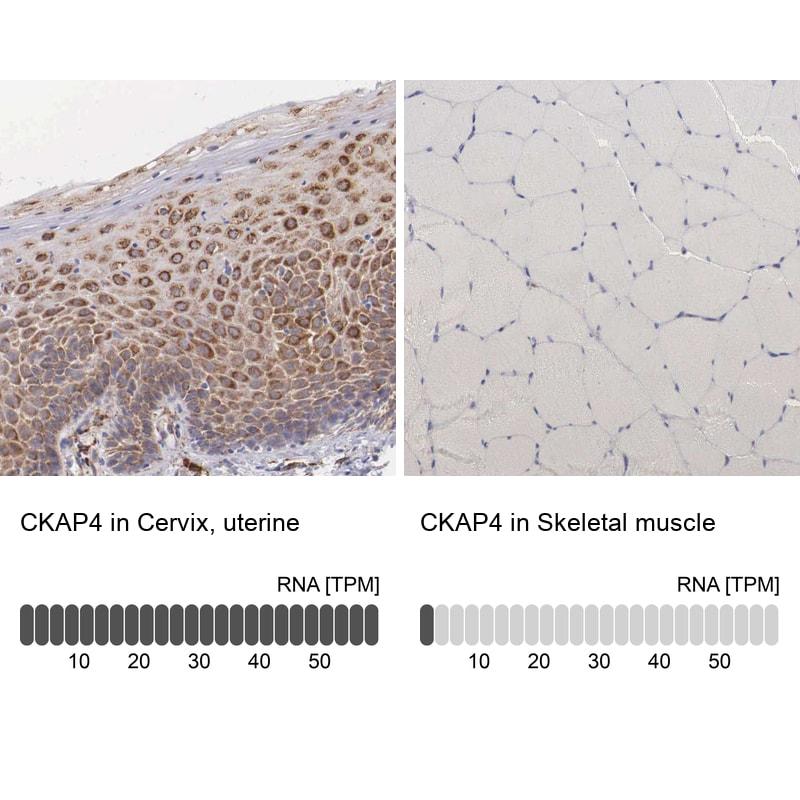 CKAP4 Antibody in Immunohistochemistry (IHC)