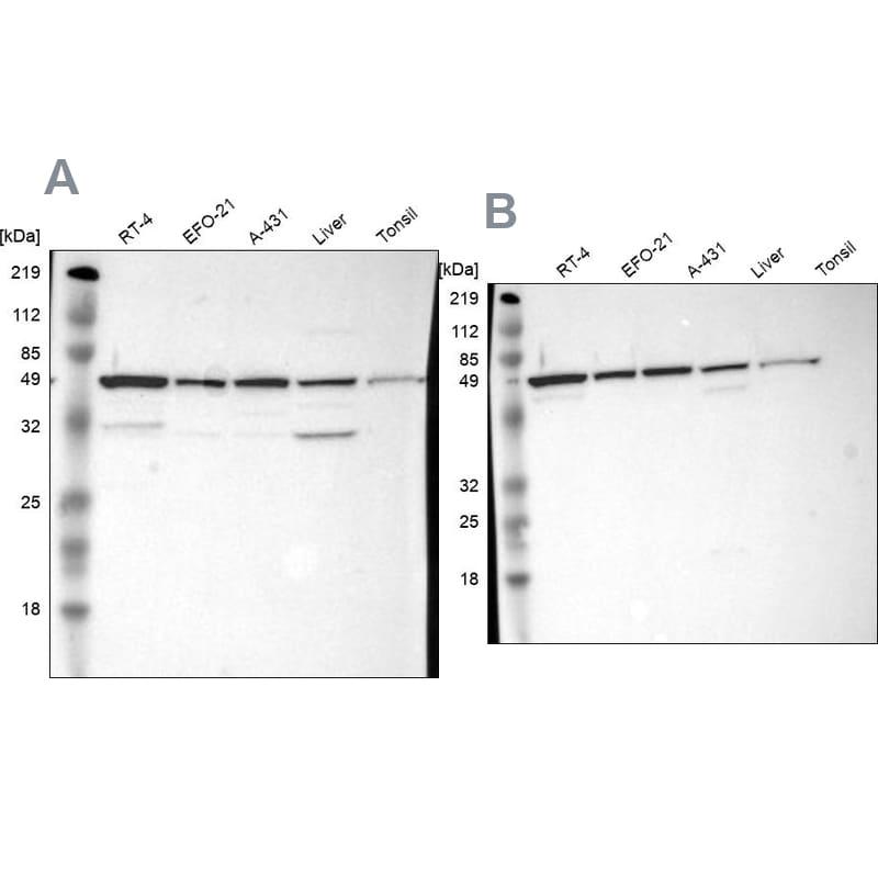 CKAP4 Antibody in Western Blot (WB)