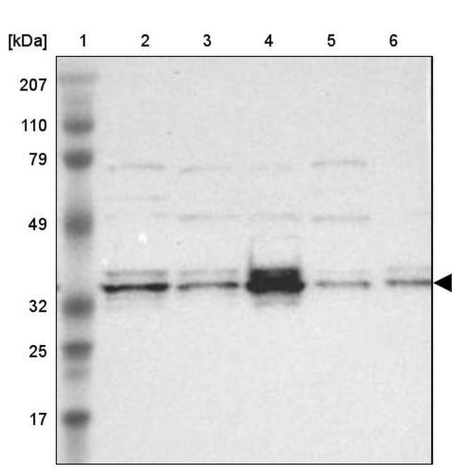 CCDC117 Antibody in Western Blot (WB)