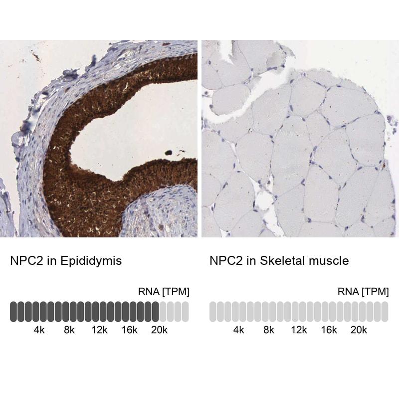 NPC2 Antibody in Immunohistochemistry (IHC)