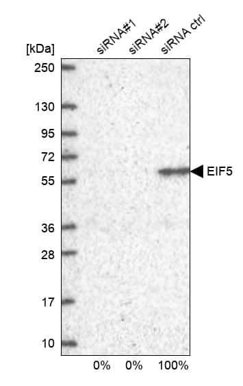 eIF5 Antibody in KnockDown