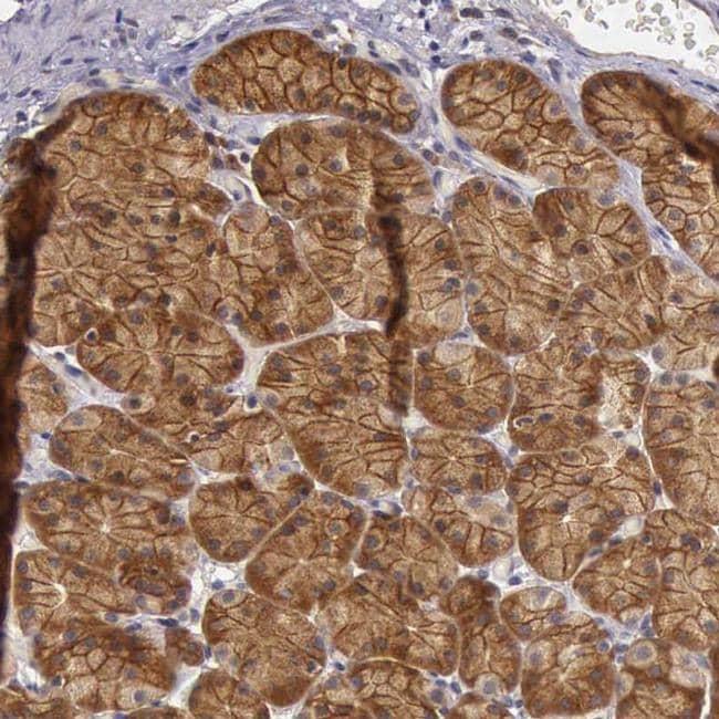 eIF5 Antibody in Immunohistochemistry (IHC)