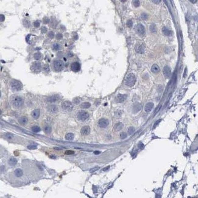 PYGL Antibody in Immunohistochemistry (IHC)