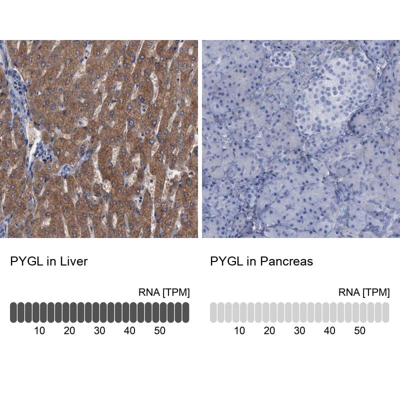 PYGL Antibody in Relative expression