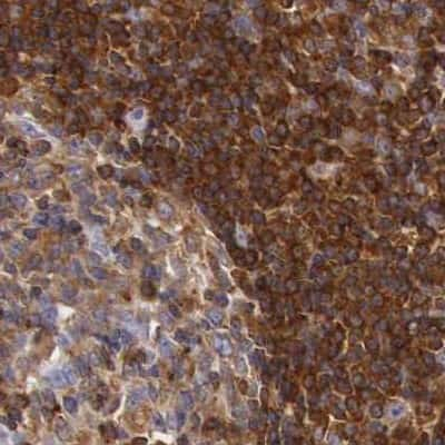 RhoGAP4 Antibody in Immunohistochemistry (IHC)