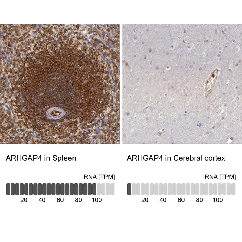 RhoGAP4 Antibody in Relative expression