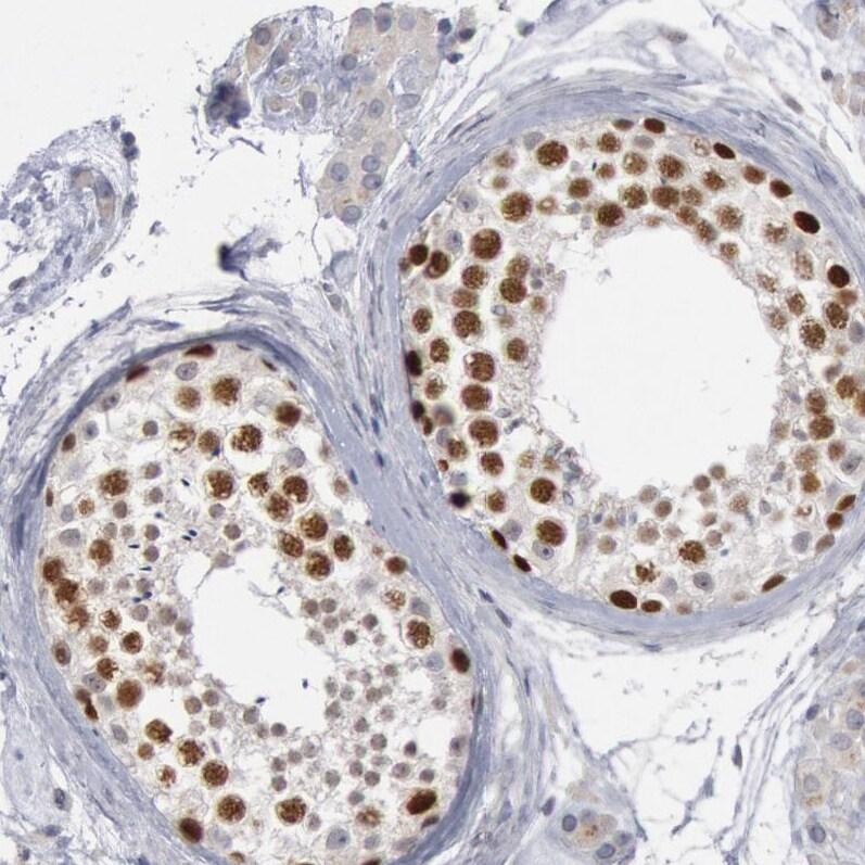 WDHD1 Antibody in Immunohistochemistry (IHC)