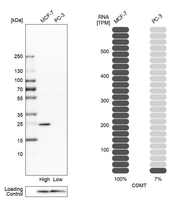 COMT Antibody in Western Blot (WB)
