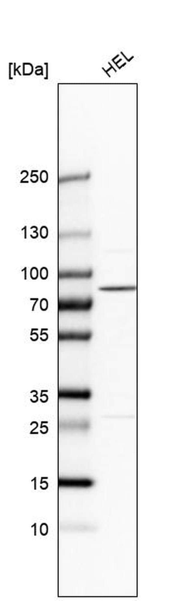 PLA2G6 Antibody in Western Blot (WB)