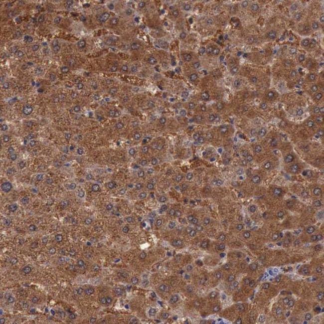 Pleckstrin 2 Antibody in Immunohistochemistry (IHC)