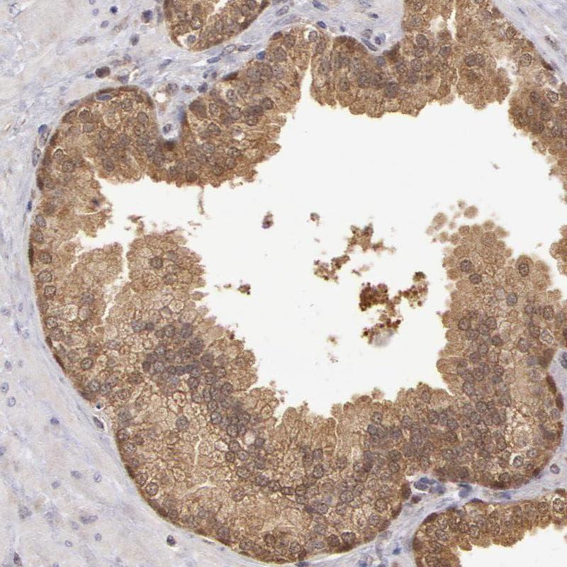MPST Antibody in Immunohistochemistry (IHC)