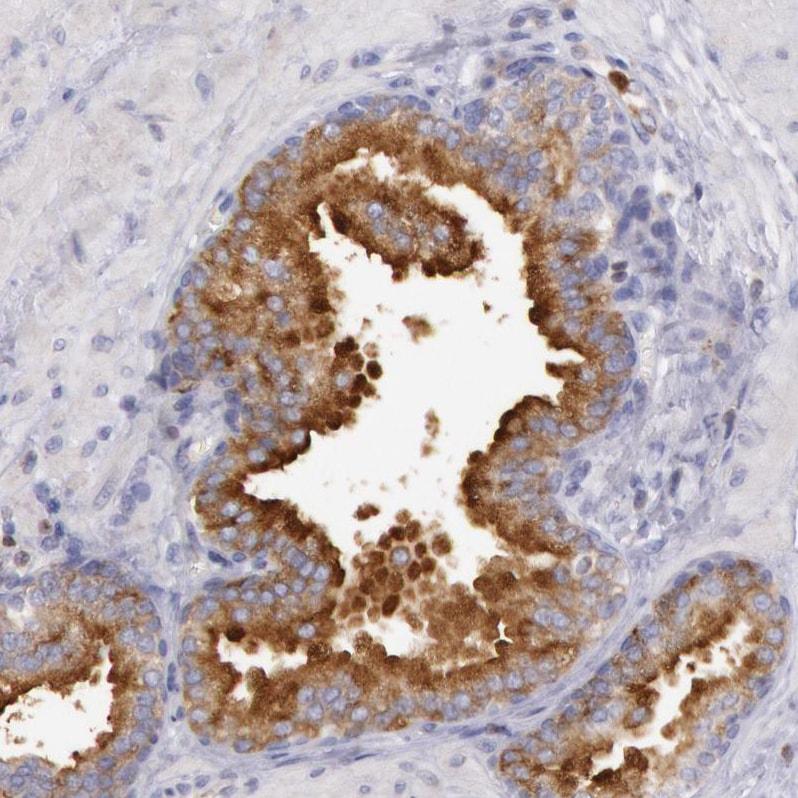 RAB27A Antibody in Immunohistochemistry (IHC)