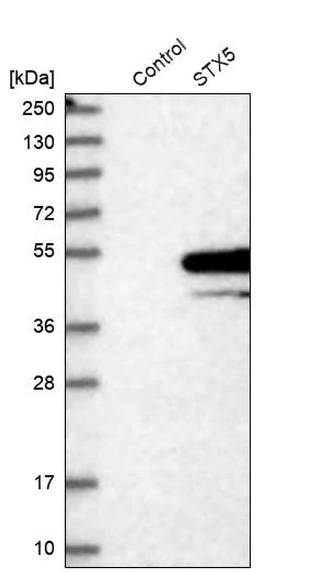 STX5 Antibody in Western Blot (WB)