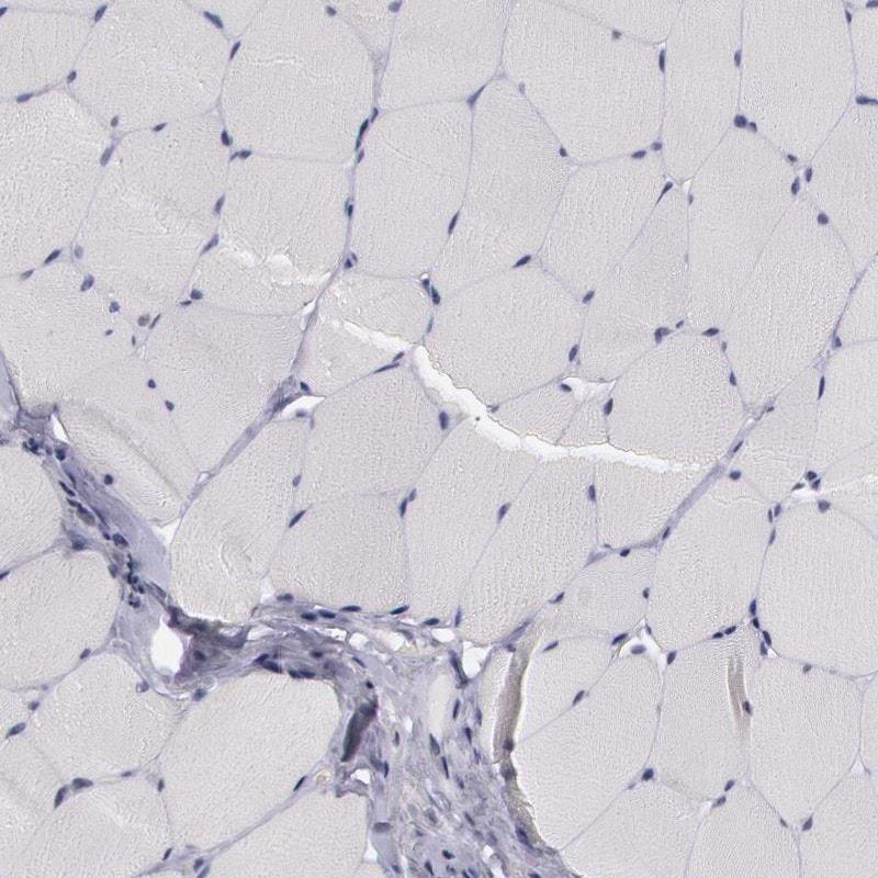 PRICKLE1 Antibody in Immunohistochemistry (IHC)