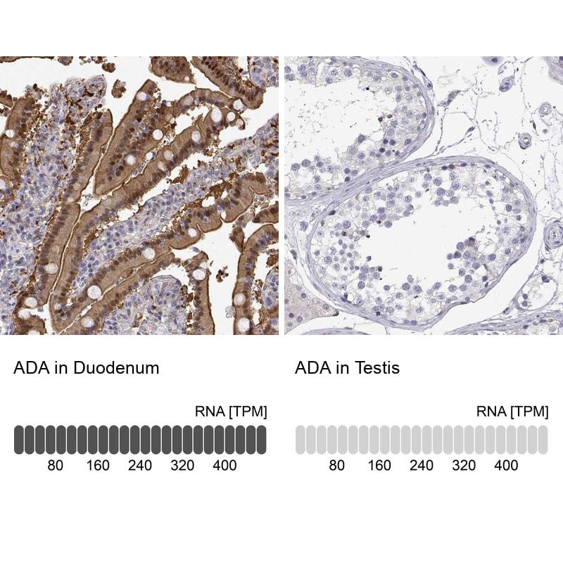 Adenosine Deaminase Antibody in Relative expression