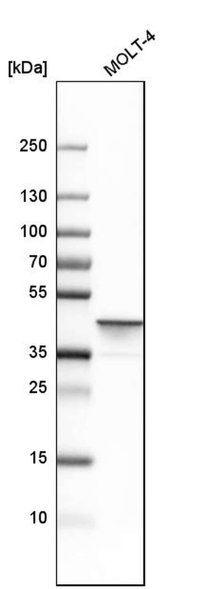 Adenosine Deaminase Antibody in Western Blot (WB)