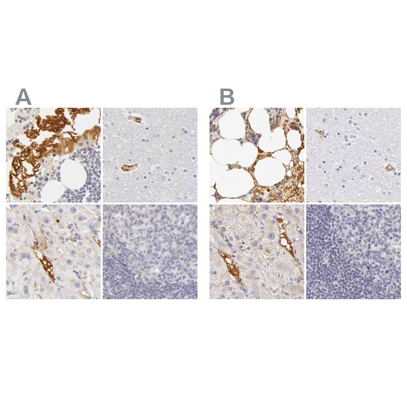 Fetuin A Antibody in Immunohistochemistry (IHC)