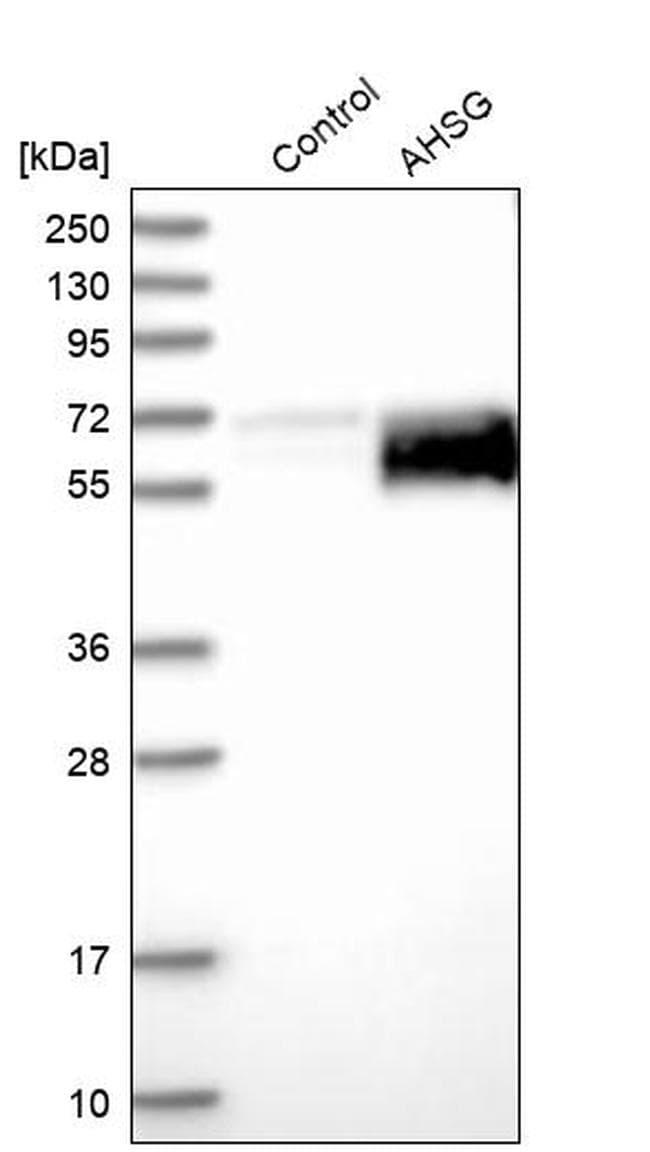 Fetuin A Antibody in Western Blot (WB)