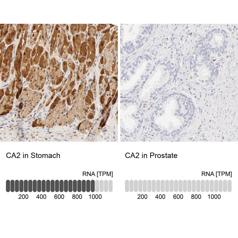 Carbonic Anhydrase II Antibody in Immunohistochemistry (IHC)
