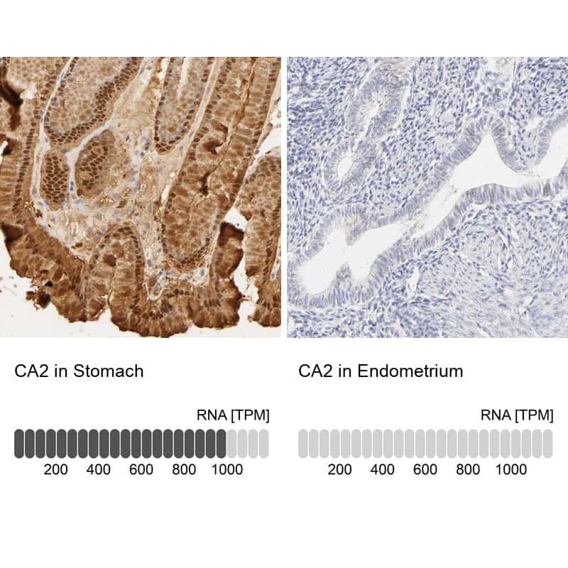 Carbonic Anhydrase II Antibody in Relative expression