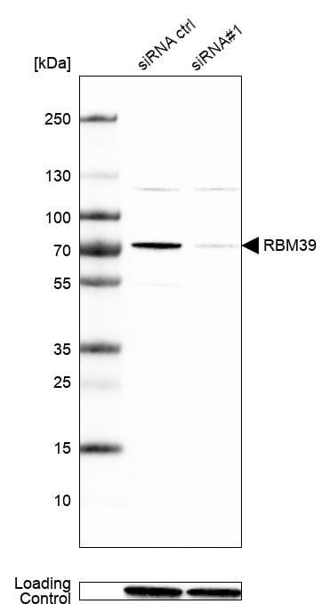 HCC1 Antibody in Knockdown