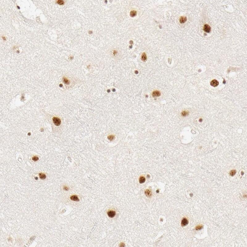 HCC1 Antibody in Immunohistochemistry (IHC)