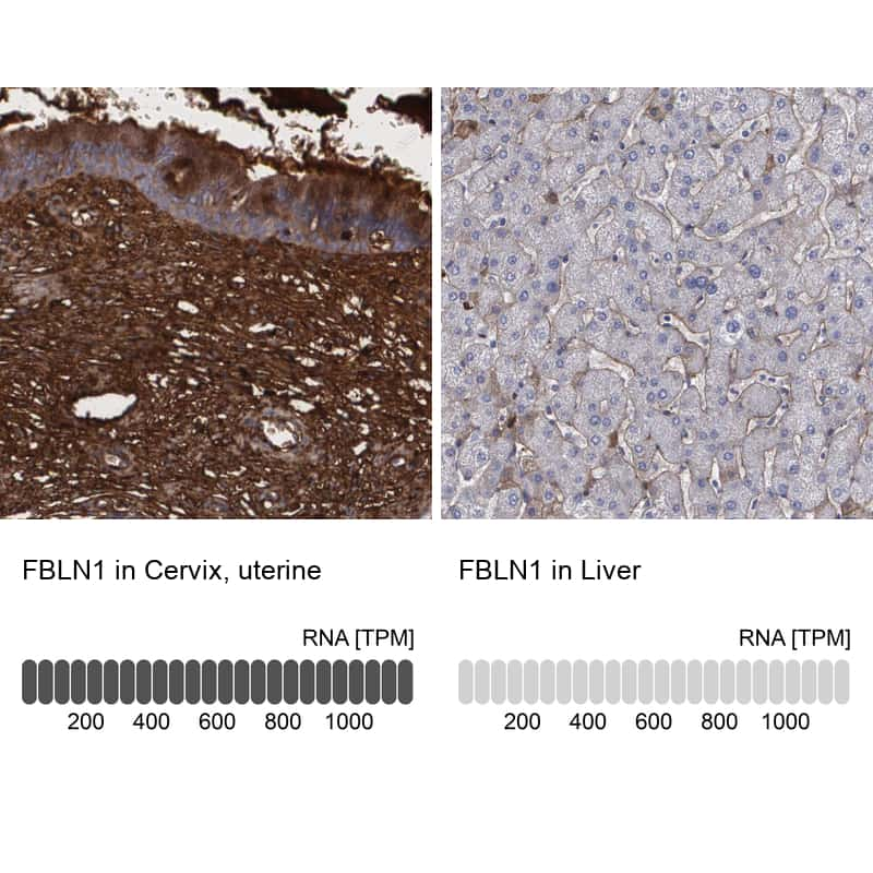 Fibulin 1 Antibody in Relative expression