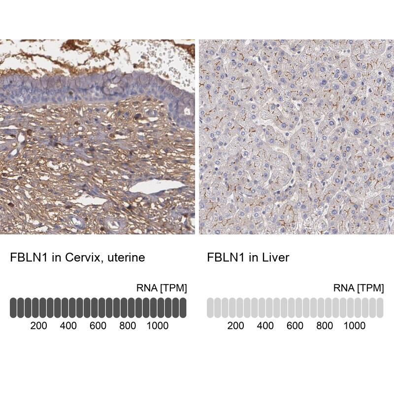 Fibulin 1 Antibody in Immunohistochemistry (IHC)