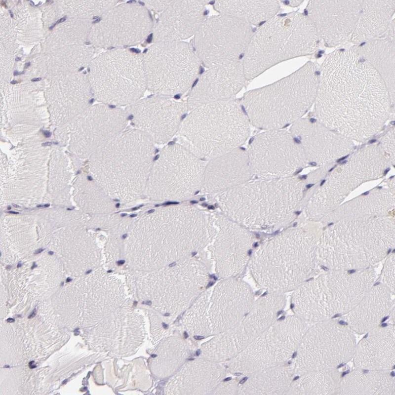 C14orf37 Antibody in Immunohistochemistry (IHC)