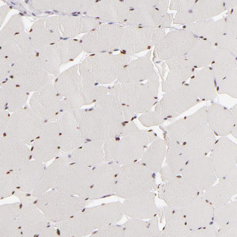 SIX1 Antibody in Immunohistochemistry (IHC)