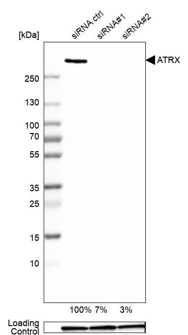 ATRX Antibody in Knockdown