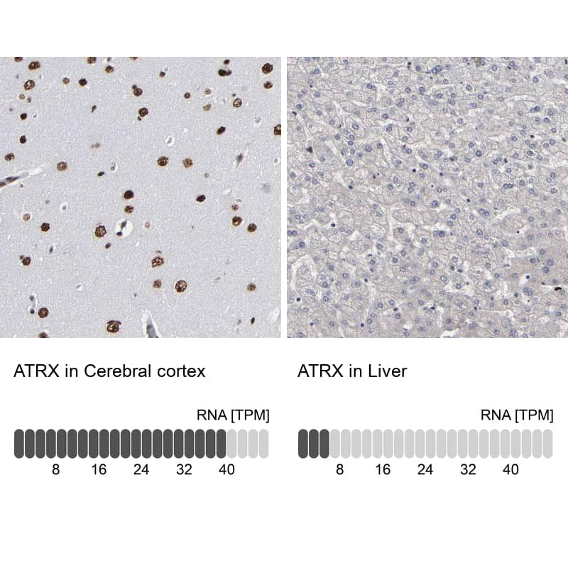 ATRX Antibody in Relative expression