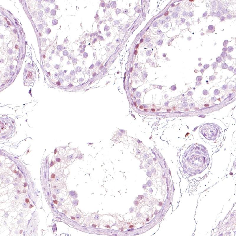 NFE2 Antibody in Immunohistochemistry (IHC)