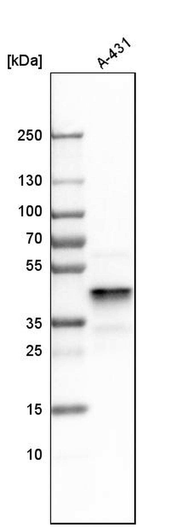 ERLIN2 Antibody in Western Blot (WB)