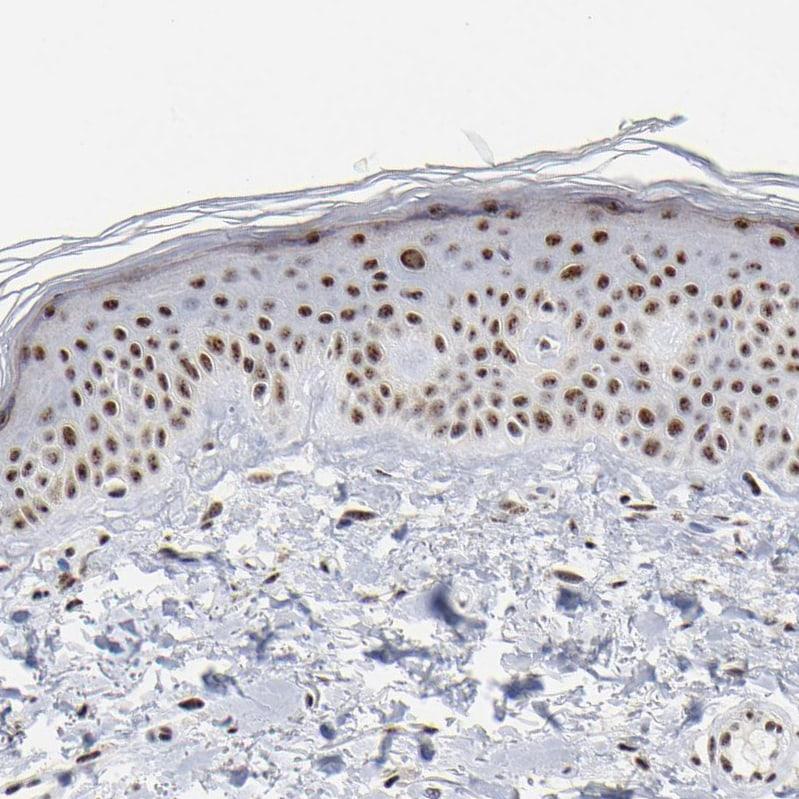 MBD4 Antibody in Immunohistochemistry (IHC)