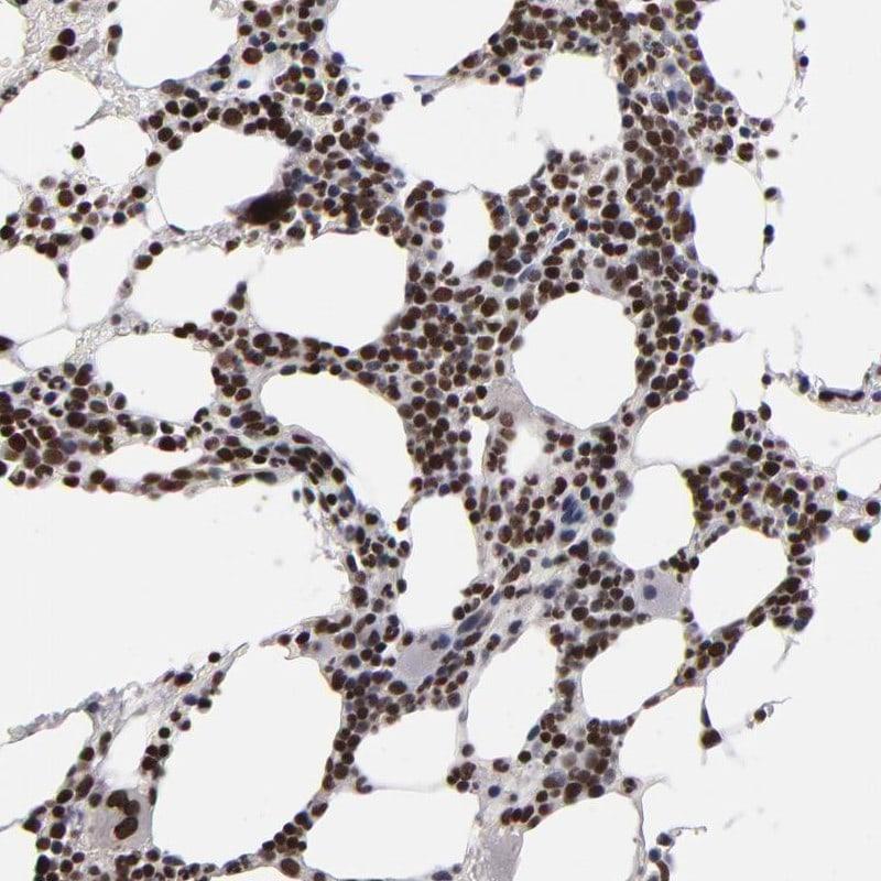 KDM6A Antibody in Immunohistochemistry (IHC)