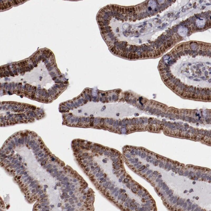 LONP1 Antibody in Immunohistochemistry (IHC)