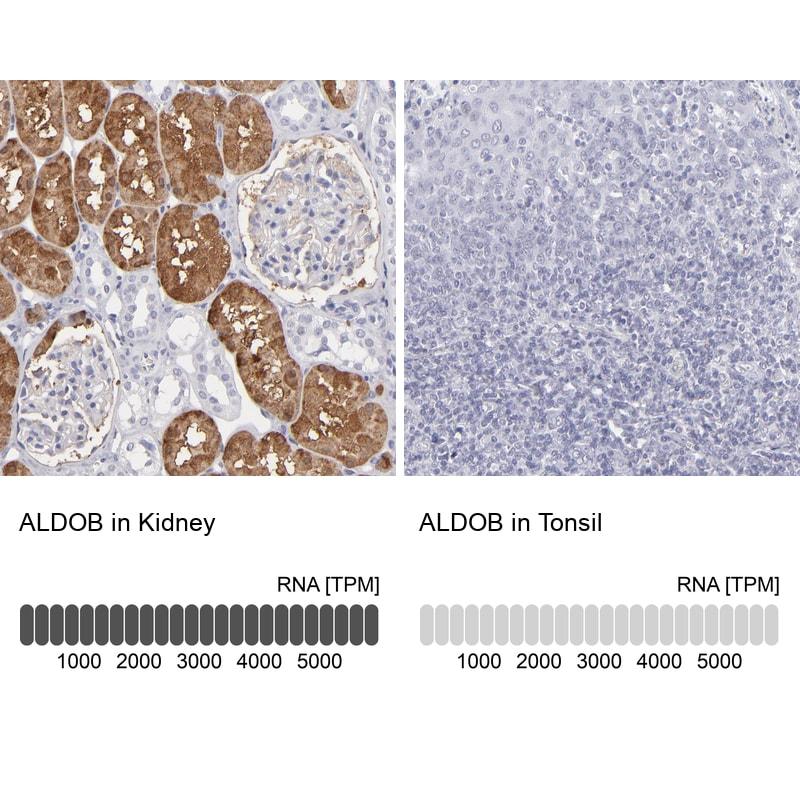 Aldolase B Antibody in Relative expression