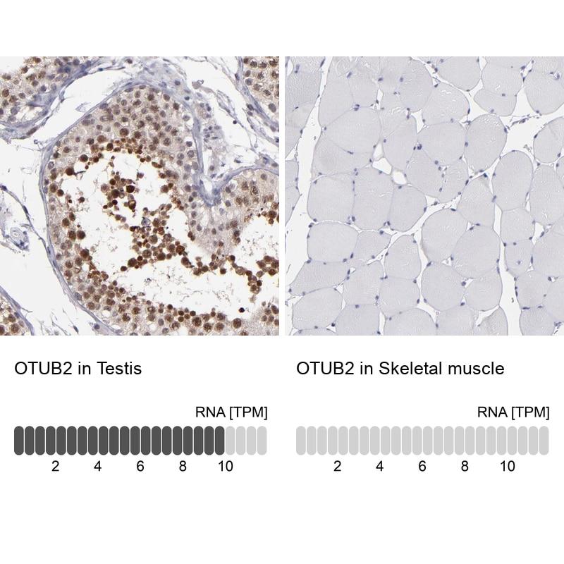OTUB2 Antibody in Relative expression