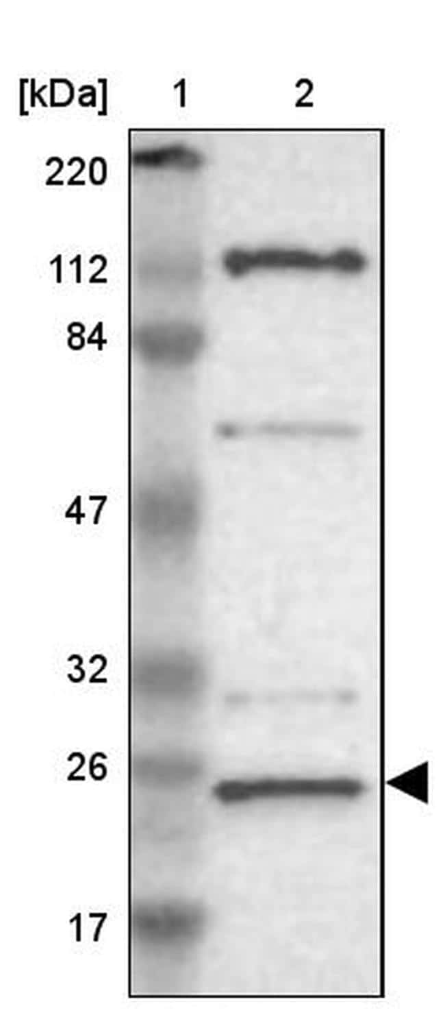 GCSAM Antibody in Western Blot (WB)