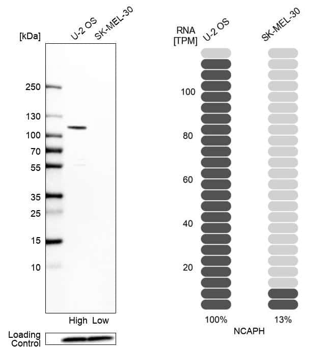 NCAPH Antibody in Relative expression