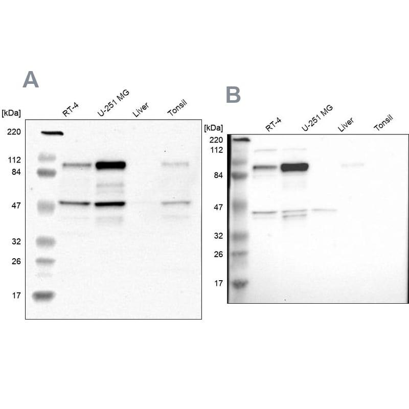 NCAPH Antibody in Western Blot (WB)