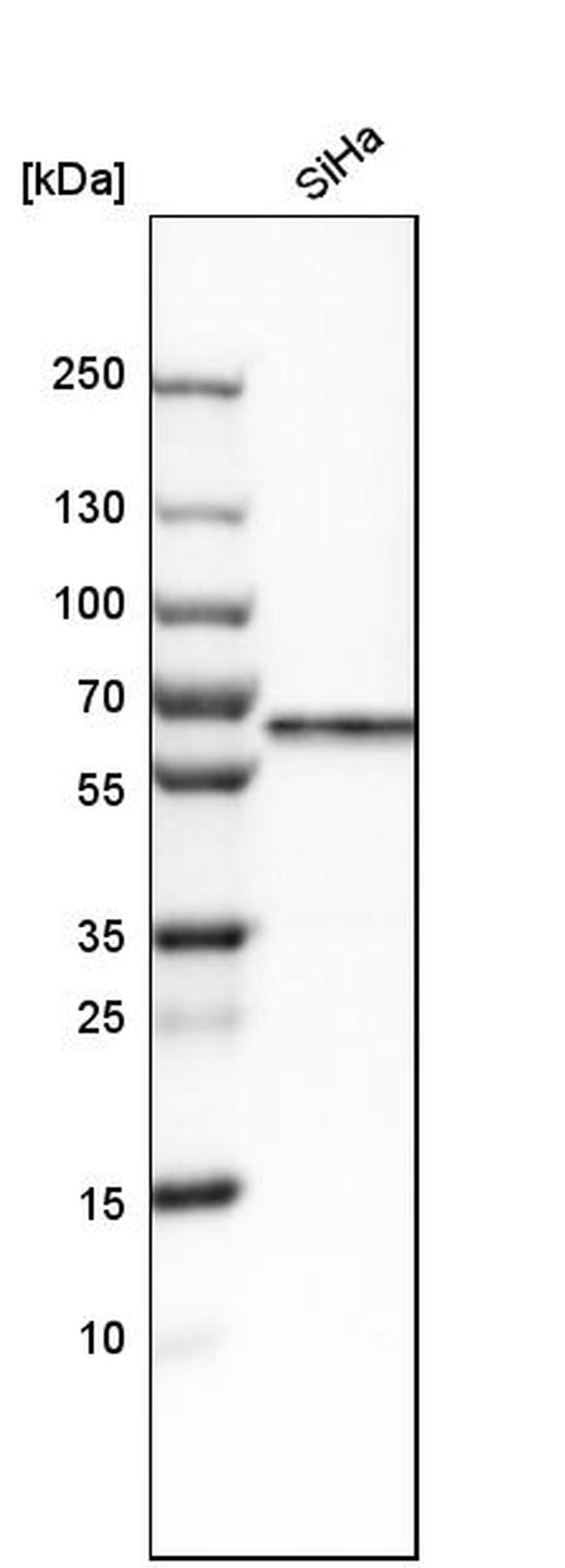 Carboxypeptidase M Antibody in Western Blot (WB)