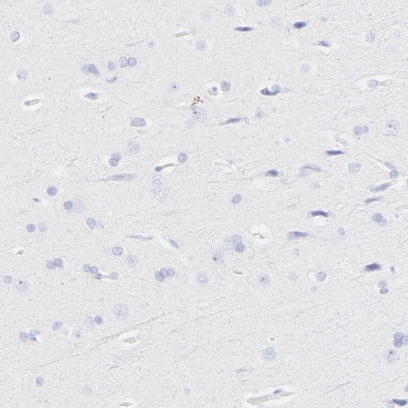 S100A12 Antibody in Immunohistochemistry (IHC)