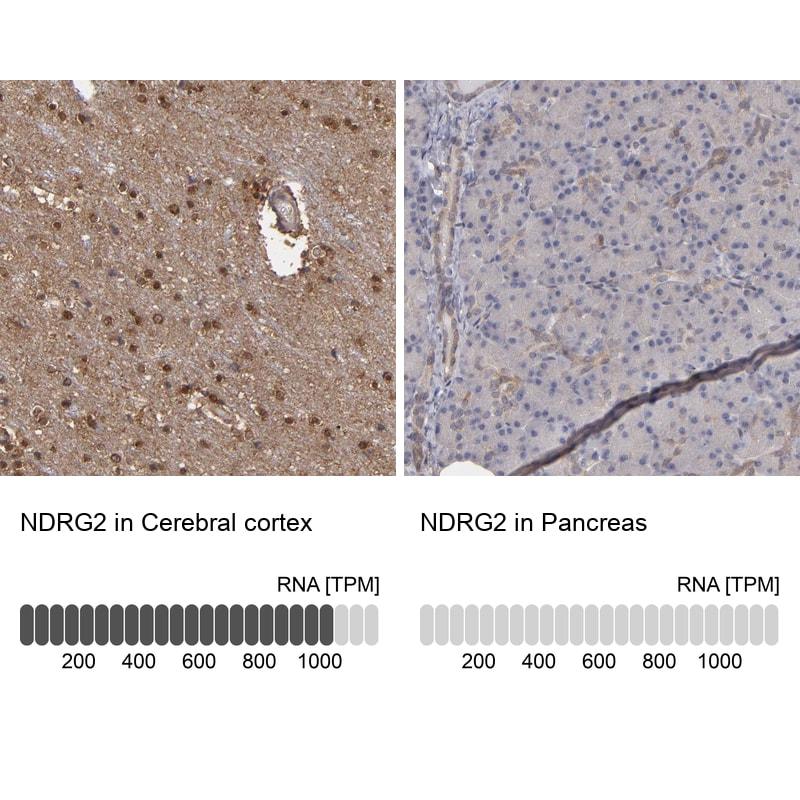 NDRG2 Antibody in Immunohistochemistry (IHC)
